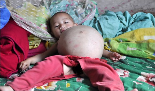 one year old girl pregnant